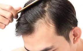 薄毛対策!豊かな髪のために取り入れたい6つの習慣