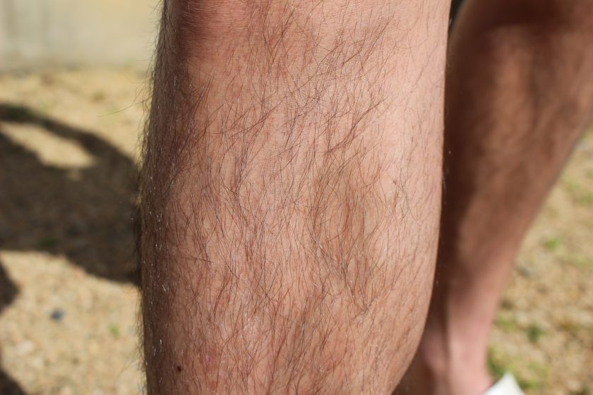 男も脱毛すべき!その理由と5つのメリット