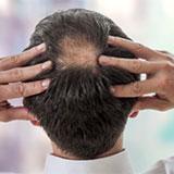 育毛治療 白髪治療